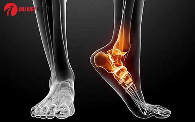 Cách xử trí khi bị gãy xương chân