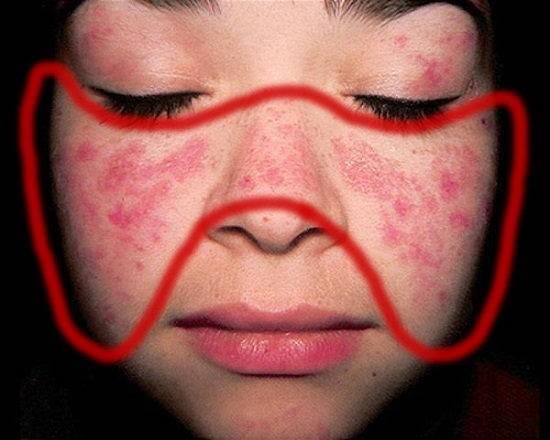 Massage tốt cho người bệnh lupus ban đỏ như thế nào?