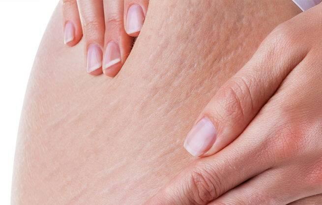 Trị rạn da cho phụ nữ sau sinh bằng nguyên liệu thiên nhiên